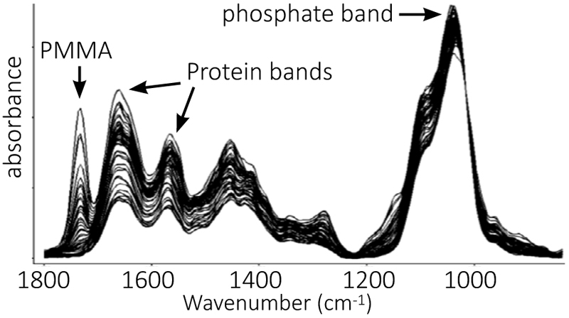AFM-IR spectra reveal mineral/protein concentration and protein secondary structures in bone.